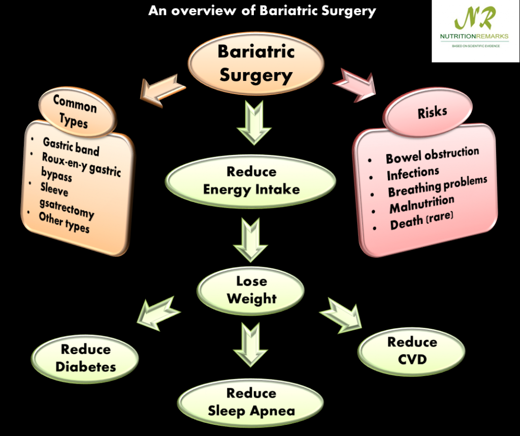 How Bariatric Surgery helps to reduce Diabetes?