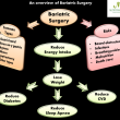 An overview of Bariatric Surgery - Nutrition Remarks