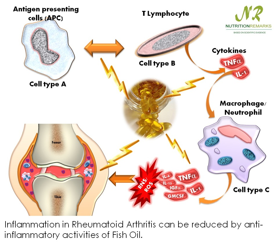 Inflammation in Rheumatoid Arthritis can be reduced by anti-inflammatory activities of Fish Oil.