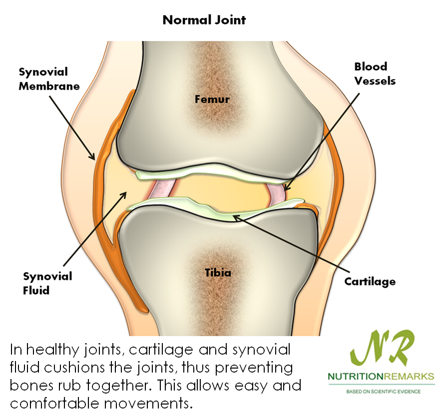 In healthy joints, cartilage and synovial fluid cushions the joints, thus preventing bones rub together. This allows easy and comfortable movements.