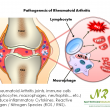 In Rheumatoid Arthritis joints, immune cells (lymphocytes, macrophages, neutrophils…etc.) produce inflammatory Cytokines, Reactive Oxygen / Nitrogen Species (ROS / RNS).