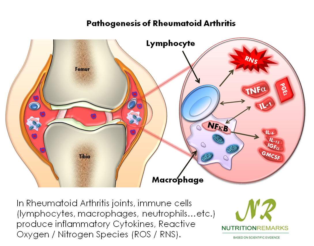 Arthritis rheumatoid rheumatoid arthritis for Best fish oil to reduce inflammation