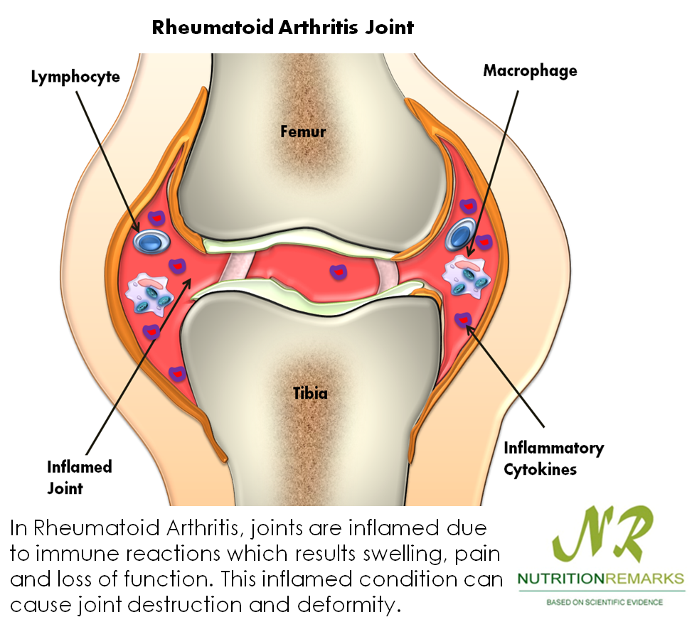 In Rheumatoid Arthritis, joints are inflamed due to immune reactions which results swelling, pain and loss of function. This inflamed condition can cause joint destruction and deformity