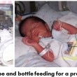 Children born preterm need expert nutritional care