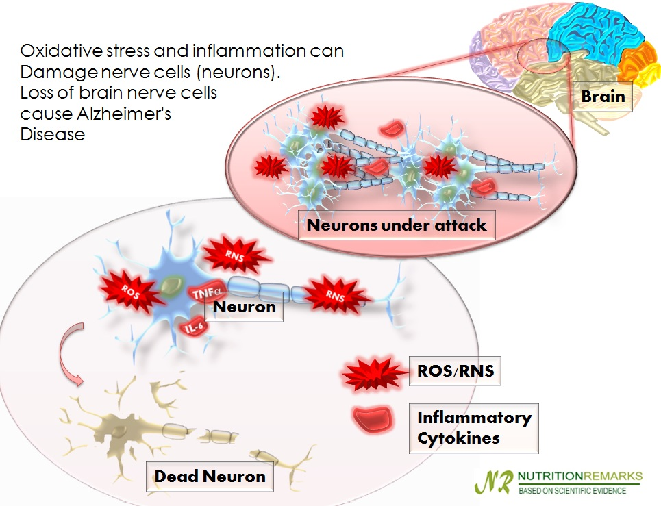 Oxidative stress and inflammation can Damage nerve cells (neurons) Loss of brain nerve cells cause Alzheimer's Disease